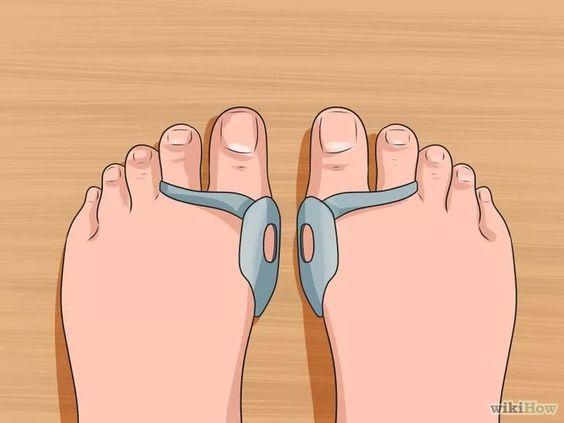 Image intitulée Get Rid of Bunions Step 5