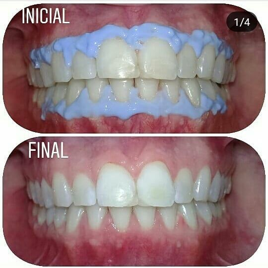 Blanqueamiento Dental Consultas Y Turnos 351 6965754 Whatsapp O Por Mp Incluye Limpieza Con Ultrasonido Blanqueamien In 2020 Dental Instagram Fashion Instagram Posts