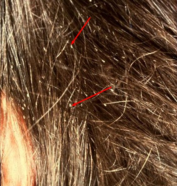Head lice nits pictures and how to get rid of head louse nits head lice nits pictures and how to get rid of head louse nits remedies natural and lice nits ccuart Gallery