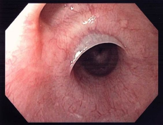 """anonymousmd: """" Esophageal Web Seen in Plummer Vinson syndrome. Can be due to chronic Fe deficiency anemia. Chronic iron deficiency can result from a heavy menses or a chronic GI bleed. Symptoms: - Fatigue, weakness - Atrophic glossitis - Esophageal..."""