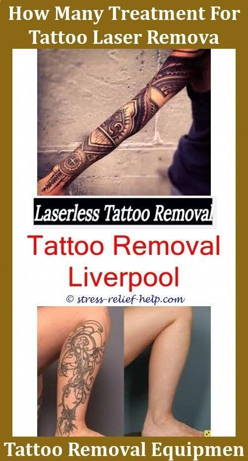 Custom Temporary Tattoos How Much Does It Cost To Remove Your Tattoo Tattoo Removal Cost Ta Tattoo Removal Cost Laser Tattoo Removal Price Tattoo Removal Cream