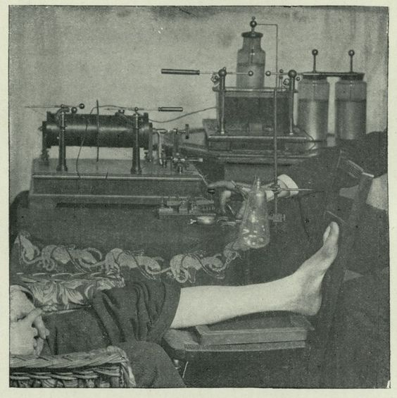 """A skiagram (or skiagraphy), aka """"shadow photograph"""" was an early term for x-ray photography. Here is a demonstration on the method for obtaining a skiagram, 1896.From: """"Archives of Clinical Skiagraphy,"""" vol.1. Historical Medical Library of The College of Physicians of Philadelphia."""