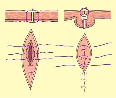 Principle of the repair of a full-thickness injury to bowel or bladder. The first layer is repaired with an interrupted absorbable suture, incorporating the mucosal layer and muscle layers. The second layer, using interrupted Lembert sutures, includes the muscle and serosal layers, imbricating the deep layer. #surgery