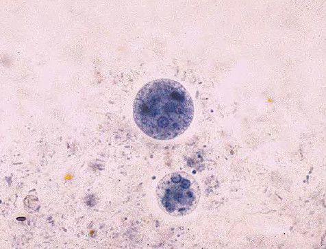 az ascaris fertőzés megelőzése