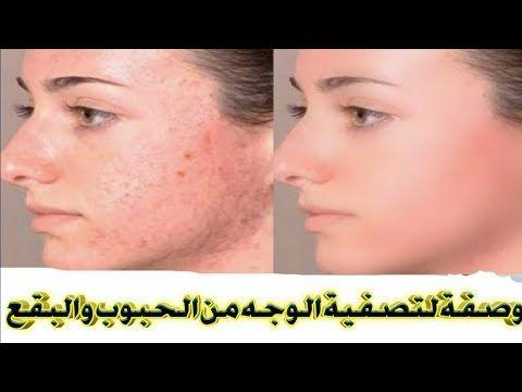 إزالة آثار الحبوب من الوجه نهائيا و تبييض الوجه بسرعة بوصفه واحده رهيبة Youtube Incoming Call Screenshot Incoming Call