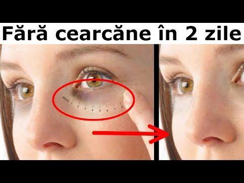 varicoză sub ochi ce să facă)