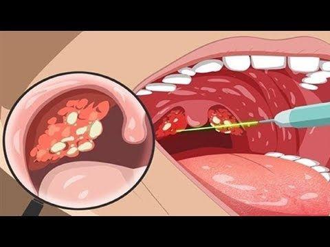 Como Eliminar El Mal Aliento De La Boca Facil Y Rapido Youtube Infeccion Garganta Remedios Para Infección De Garganta Mal Aliento