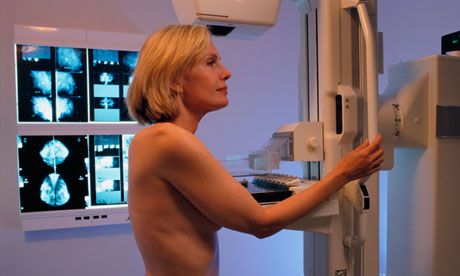 Thousands of women with breast cancer could be spared chemotherapy following NHS approval of a test which can help establish who needs the treatment and who might not...the oncotype DX test, was approved for women who have oestrogen receptor positive (ER+), lymph node negative (LN–) and human epidermal growth factor receptor 2 negative (HER2–) in early breast cancer..