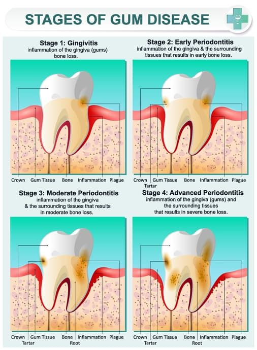 How To Get Gums To Stop Bleeding After Tooth Extraction