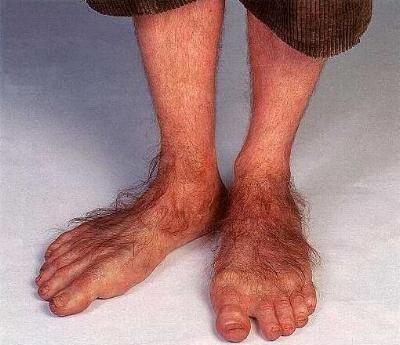 hairy legs, ladies | ... of Elrond » LotR News & Information » AAAHHHHH!!!! Hairy feet: