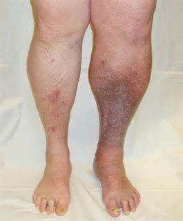 type 2 diabetes leg ulcer case study Smoking, insulin use, microalbuminuria, cardiovascular disease and depression  our findings  type 2 diabetes had past or present foot ulcers [33] further, in a.