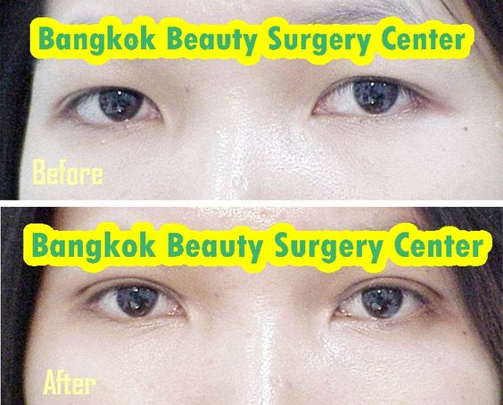 Bangkok Beauty Surgery Center Double Eyelid  Before and After Photos