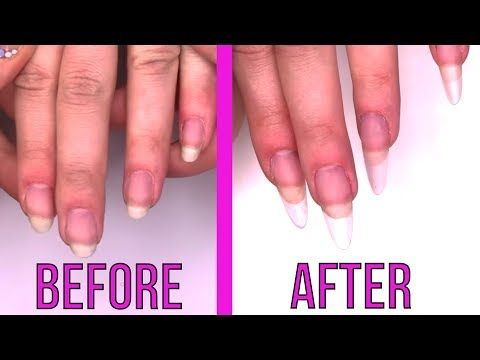 Straightening Fingers And Lengthening Natural Nails How To Youtube Natural Nails Remove Acrylic Nails Acrylic Nails At Home