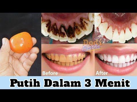 Cara Memutihkan Gigi Kuning Dirumah Dalam Beberapa Menit Saja Youtube Pemutih Gigi Gigi Obat Alami