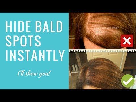 Bumble And Bumble Hair Powder For Bald Spots Thin Hair Hair Color Spray Thin Hair Styles For Women Bald Spot