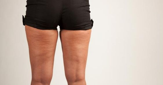 10 conseils pour brûler la graisse au niveau des cuisses Cuisses d'enfer mode d'emploi ! (1) | Fourchette & Bikini