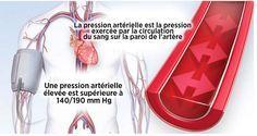 Pour prévenir l'hypertension artérielle ou faire baisser la pression artérielle, vous pouvez opérer certains changements dans votre style de vie et votre alimentation