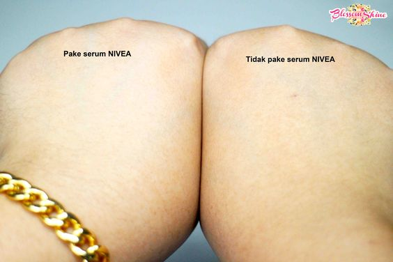 Can you see the difference? I purposely used on my 1 hand only; so you can see the difference that NIVEA Extra White Radiant & Smooth Body Serum can do for you