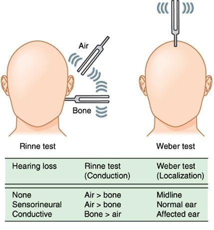 rinne test - google search | nursing | pinterest | pesquisa, Skeleton
