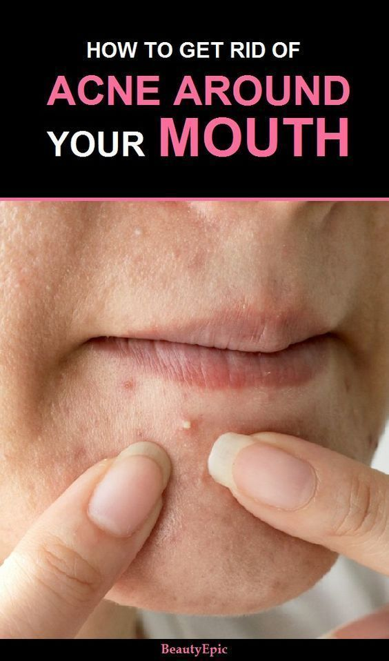 How To Get Rid Of Acne Around Mouth How To Get Rid Of Acne How To Treat Acne Acne Skin