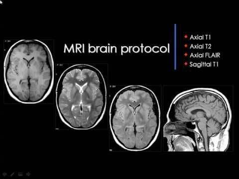 Brain Radiological Anatomy Prof Dr Mamdouh Mahfouz In Arabic Youtube Youtube Radiology Mri Brain