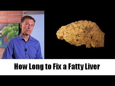 How Long Does It Take To Fix A Fatty Liver By Dr Berg Fatty Liver Remedies Fatty Liver Fatty Liver Disease Diet