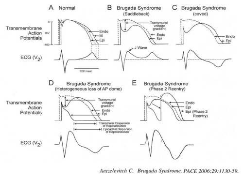 mechanism of brugada syndrome three types of ecg 2