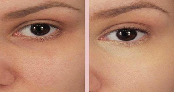 Ce masque au bicarbonate de soude prévient et réduit les boutons d'acné et les points noirs. Résultats incroyables !