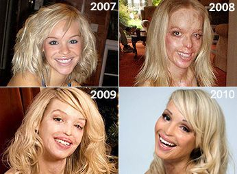 Katie Piper was an aspiring model and television ...