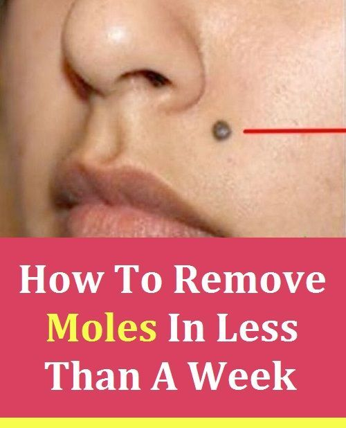 How To Get Rid Of Hairy Mole On Face