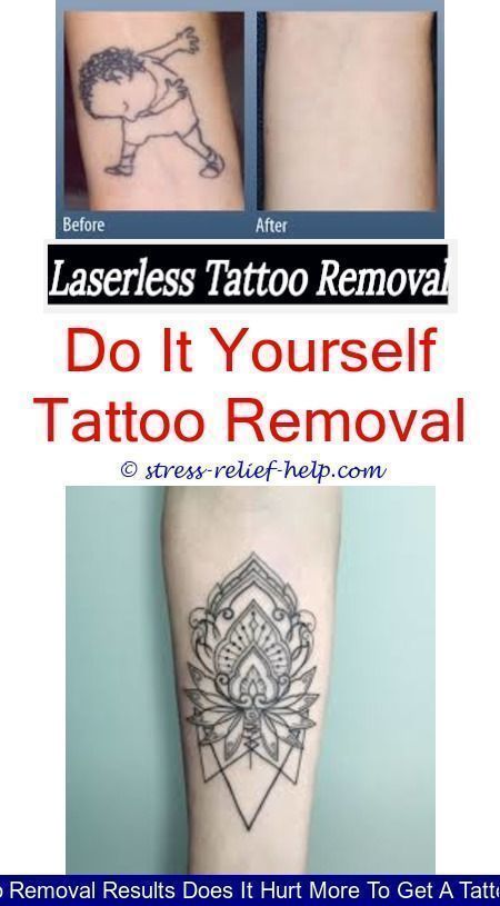 Laser Tattoo Removal Cost How Much Did Your Laser Tattoo Removal Cost What Does Tattoo Removal Look Like After Ey Laser Tattoo Tattoo Removal Cost Diy Tattoo