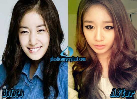 T Ara Jiyeon Plastic Surgery Before And After Plastic Surgery