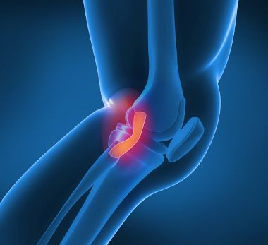 Bupa Knee Clinic - Lateral collateral ligament (LCL) injury