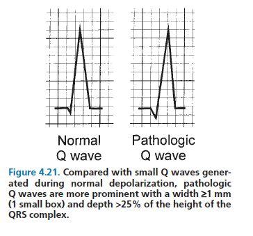 Pathologic Q waves (transmural infarct) | Cardio ...