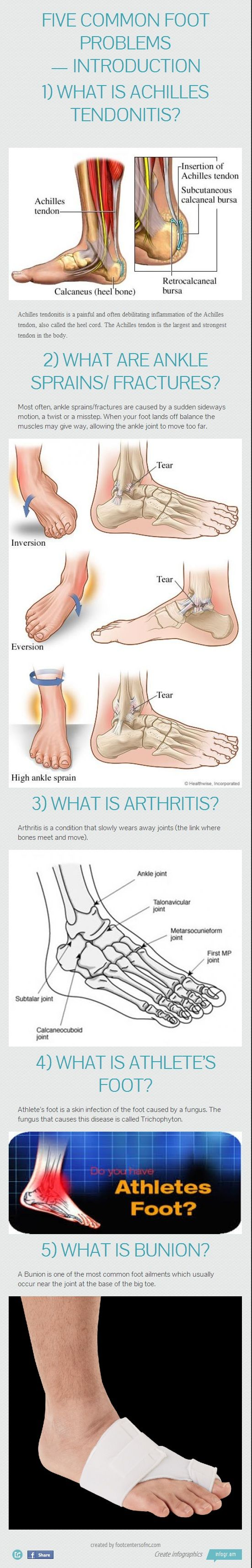 5 Common Foot Problems #Infographics — Lightscap3s.com: