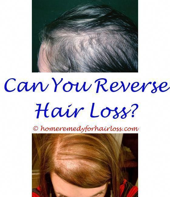 Hair Loss Hairstyles For Postpartum Hair Loss Reasons For Hair Thinning And Hair Loss Hair Loss Does Dri Help Hair Loss Reverse Hair Loss Hair Loss Solutions