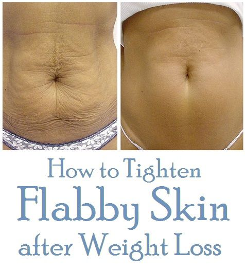 How To Tighten Flabby Skin After Weight Loss Health