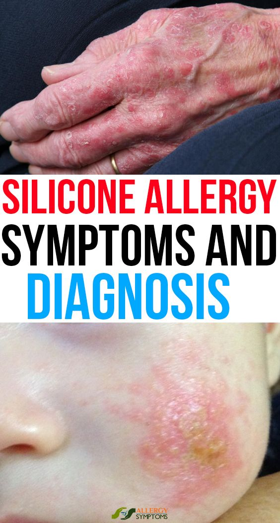 Silicone Allergy Symptoms And Diagnosis Allergy Symptoms Allergies Diagnosis