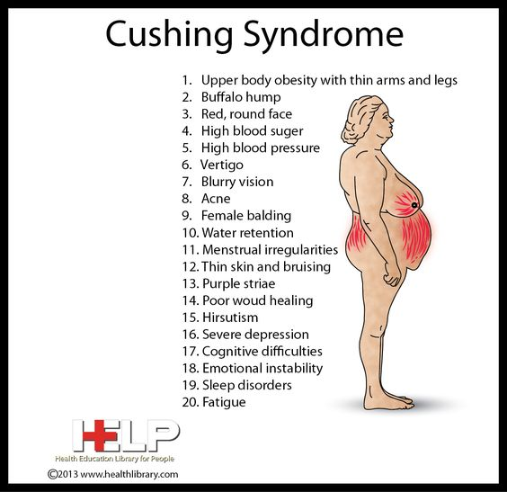 Cushing Syndrome, this is what I have- u can see how it takes a perfectly nml body and morphs it into a Cushingoid body. Yuck