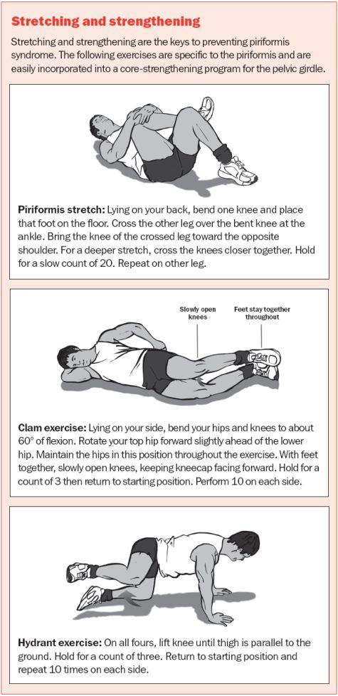 Oh, piriformis syndrome--how I loathe thee.