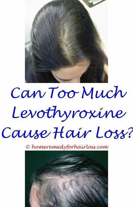 Hair Loss Head Wraps Natural Hair Color Without Chemicals And Hair Loss Hair L Chemic Hair Loss Natural Remedy Hair Loss Remedies Best Hair Loss Shampoo