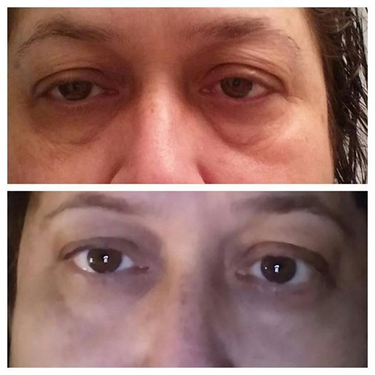 My eyes before & after 5 weeks using Lip and Eye.