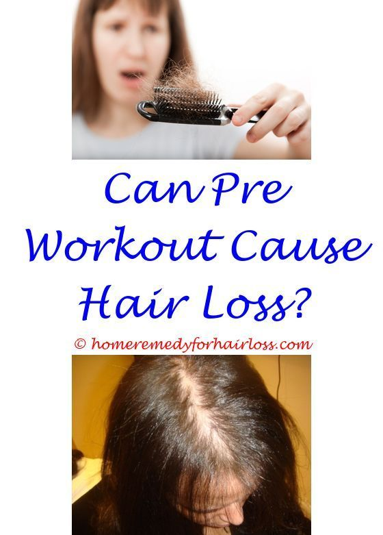 Kevis 8 Hair Loss Reviews Contagious Causes Of Hair Loss On Cats Ears Prozac Hair Loss How Long B Help Hair Loss Vitamins For Hair Loss What Causes Hair Loss