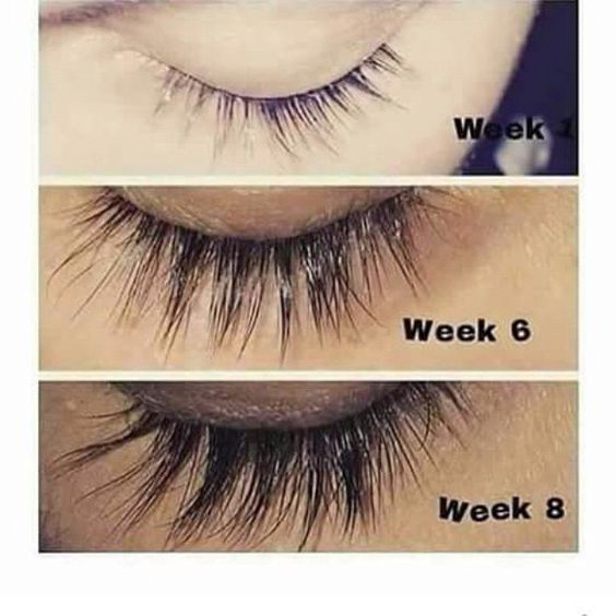 How To Get Rid Of An Eyelash In Your Eye
