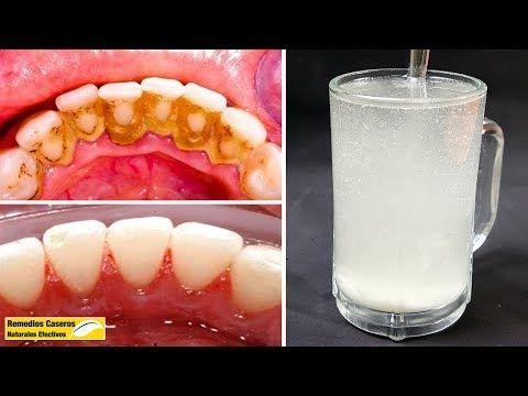 En 5 Minutos Eliminar La Placa Dental De Los Dientes Sólo Con Esta Mezcla Youtube Placas Dentales Como Limpiar Los Dientes Limpiar Dientes