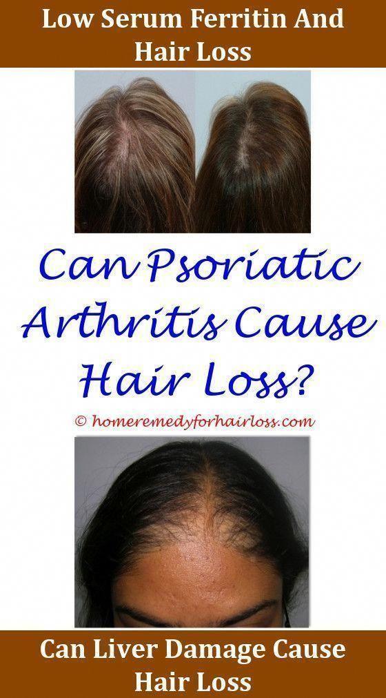 Hairmax Lasercomb Hair Loss Forum Hair Loss Does Lack Of Iron