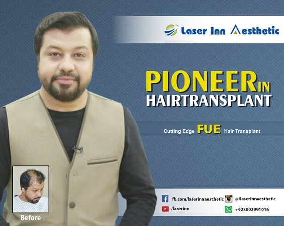 Get Cutting Edge FUE Hair Transplant from Laser Inn Aesthetic Pioneer in Hair Transplant Call Now : 0300-2991016 Website : http://www.liasc.com/ #hairtransplantkarachi #fuehairtransplant #hairtransplantpakistan #hairtransplant