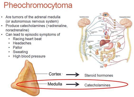 Pheochromocytoma with weight gain