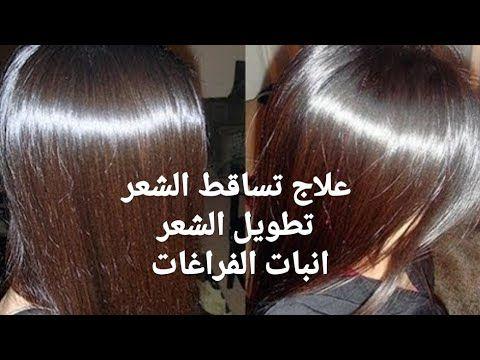 ثلاث وصفات جبااارة لعلاج تساقط الشعر وتقويته وتطويله وانبات الفراغات شامبو وبلسم ولوسيون طبيعى Youtube Egyptian Beauty Beauty Hacks Beauty