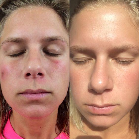 rea acne skin 5